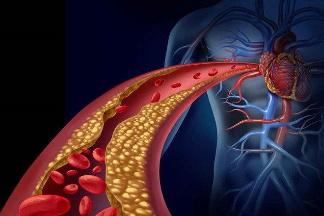 L – Carnitine – liệu pháp bổ sung cho một trái tim khỏe mạnh